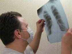 b_250_250_16777215_00_images_tuberkulez.jpg